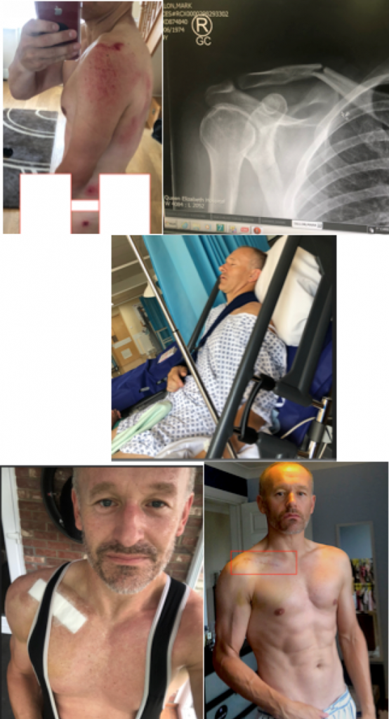 Figure 1. Me immediately post crash battered, bruised and collar bone snapped. Then post operation to removal of bandages and stitches.